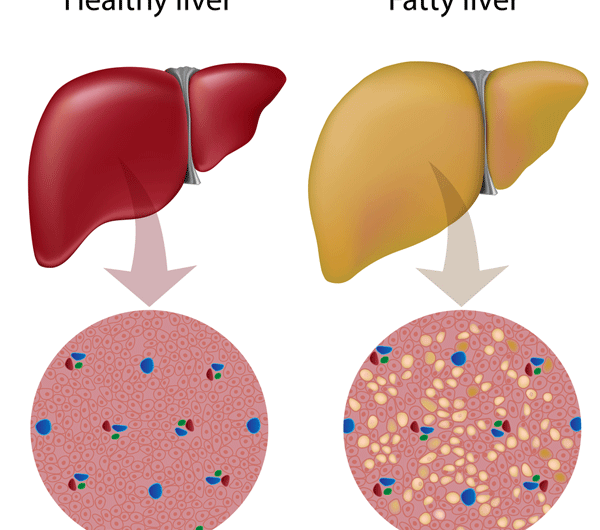 Diet For Reducing A Fatty Liver At Home