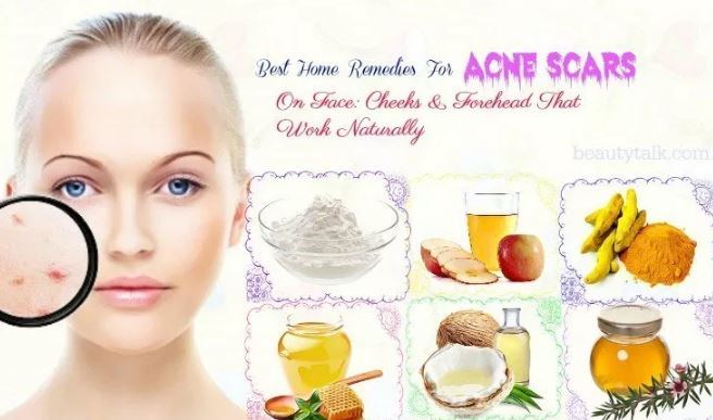 How To Fade Acne Scars Home Remedies And Natural Treatments