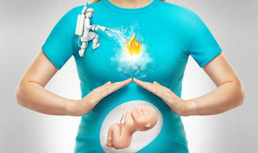 How To Get Rid Of Heartburn (Acid Reflux) During Pregnancy Fast   GERD