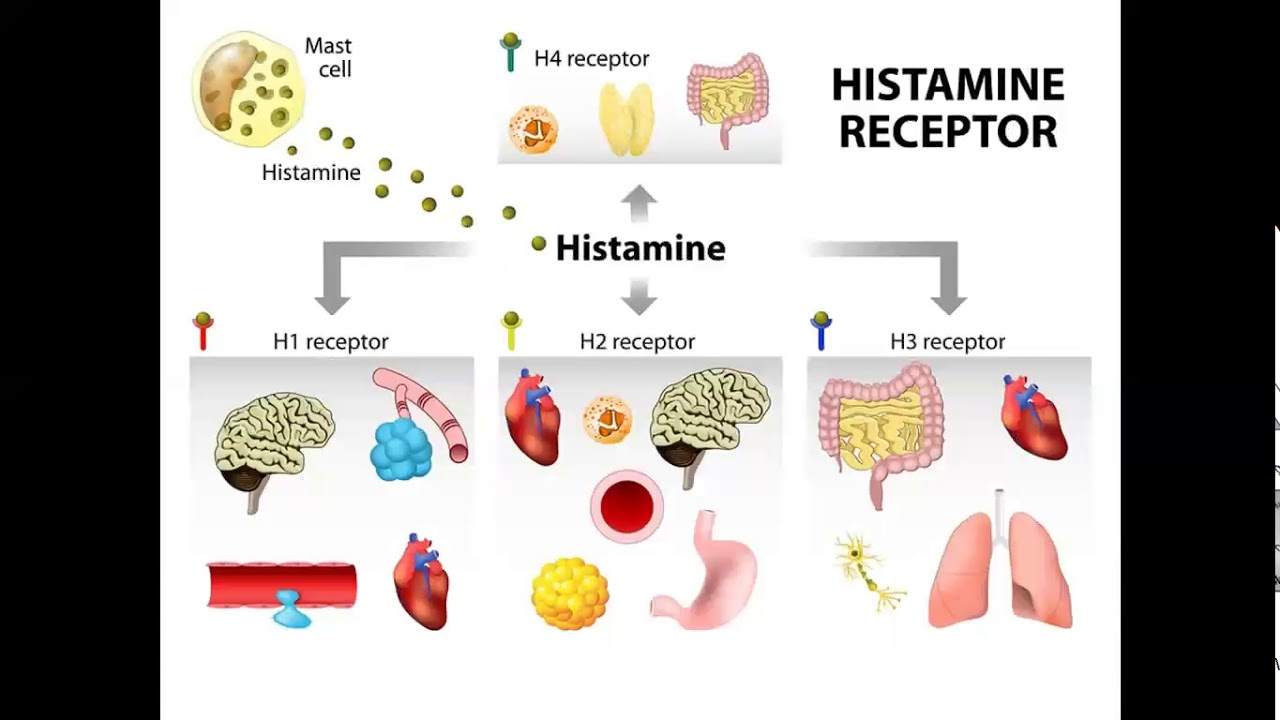 Reduce Or Cure Histamine Intolerance Of Your Body Naturally