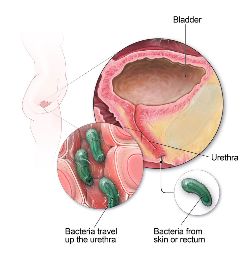 Urinary-Tract-Infection-UTI-Signs-Remedies-Symptoms