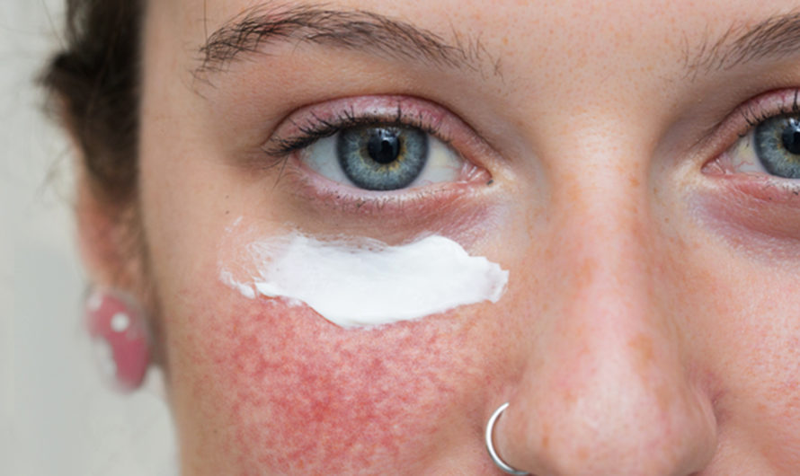7 Best Treatments For Rosacea, Causes & Symptoms | Home Cures | Skin