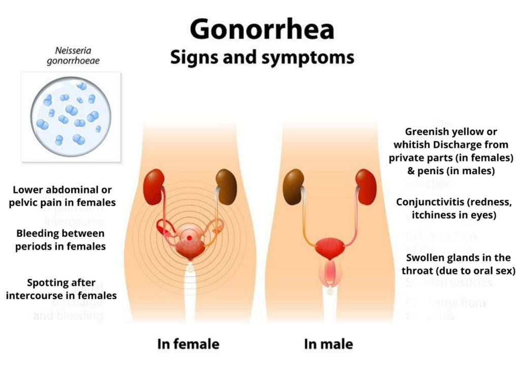Gonorrhea Symptoms Causes Treatment Remedies Antibiotics Pics