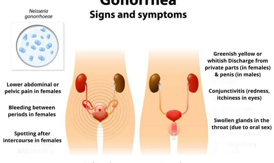 Gonorrhea Symptoms, Causes, Treatment & Remedies | Antibiotics | Pics