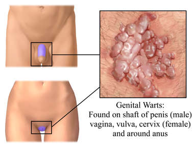 What Are Genital Warts & How Can You Diagnose HPV?