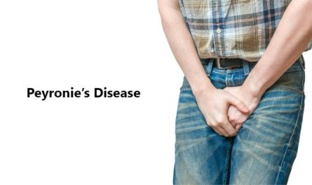 Peyronies Disease Home Treatment Symptoms Causes and Pictures