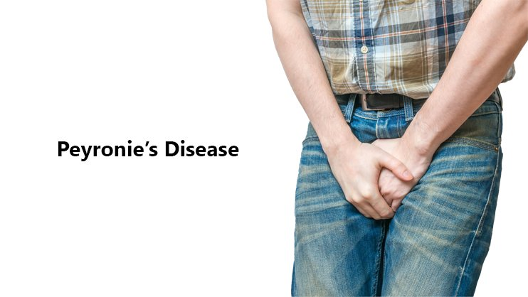 Peyronie's Disease Home Treatment, Symptoms, Causes & Pictures