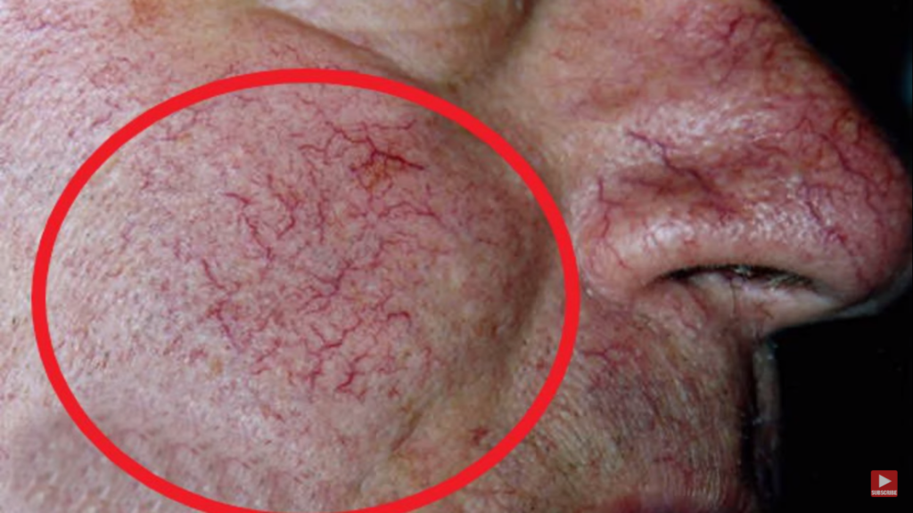 How is Rosacea Diagnosed?