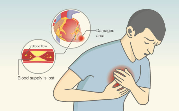 What Does Angina Feel Like And Causes Symptoms Treatment  Alcohol
