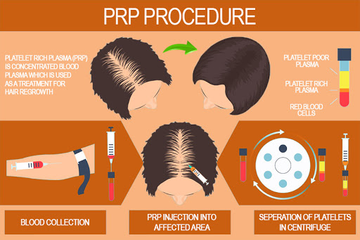 Platelet Rich Plasma Therapy | What Should I Avoid After PRP Experience