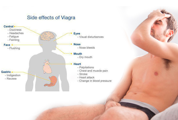 Serious Side Effects Of Taking Viagra (Sildenafil) | How To Take Viagra?