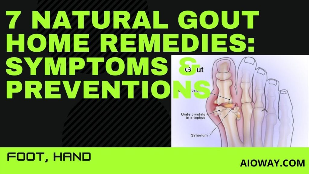 7 Natural Gout Home Remedies: Symptoms & Preventions | Foot, Hand
